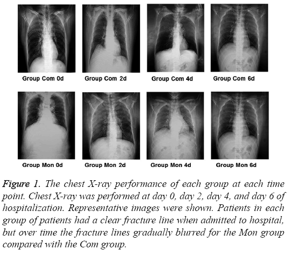 biomedres-chest-X-ray-performance
