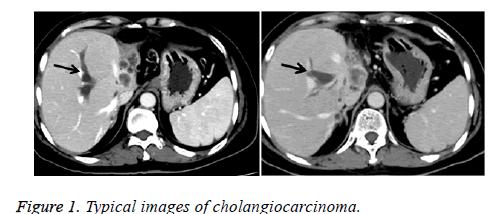 biomedres-cholangiocarcinoma