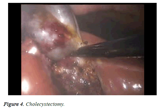 biomedres-cholecystectomy