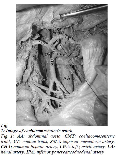 biomedres-coeliacomesenteric-trunk