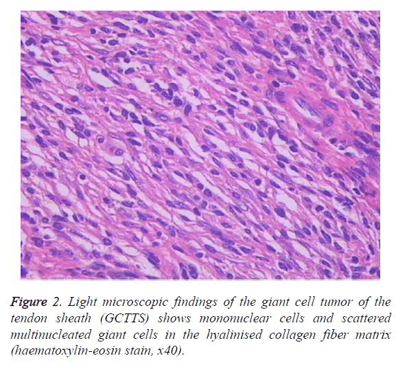 biomedres-collagen-fiber