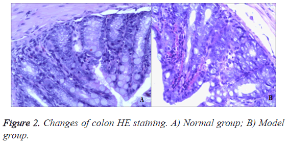 biomedres-colon-HE-staining