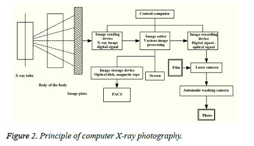 biomedres-computer-X-ray