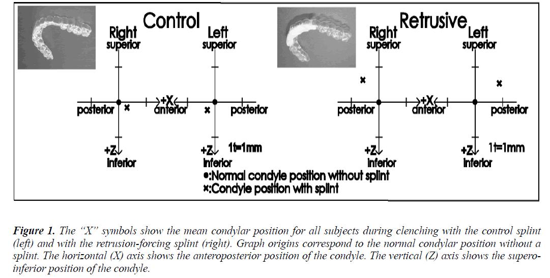 biomedres-condylar-position