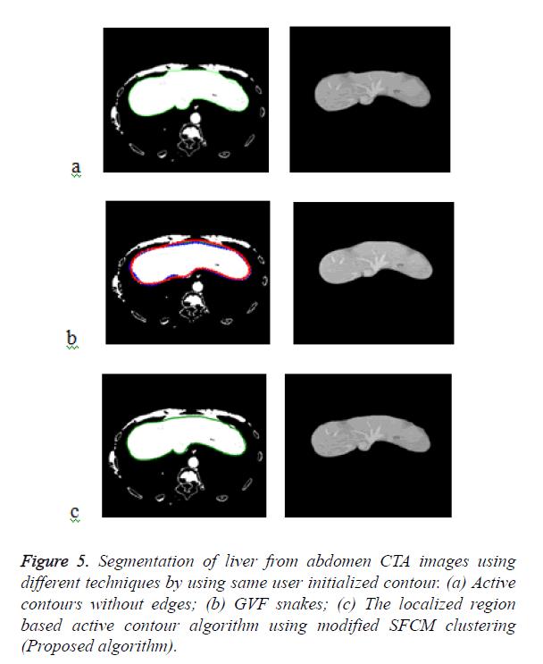 biomedres-contour-algorithm