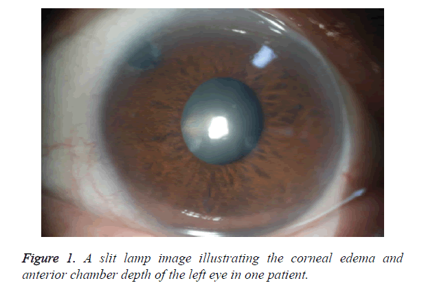 biomedres-corneal-edema