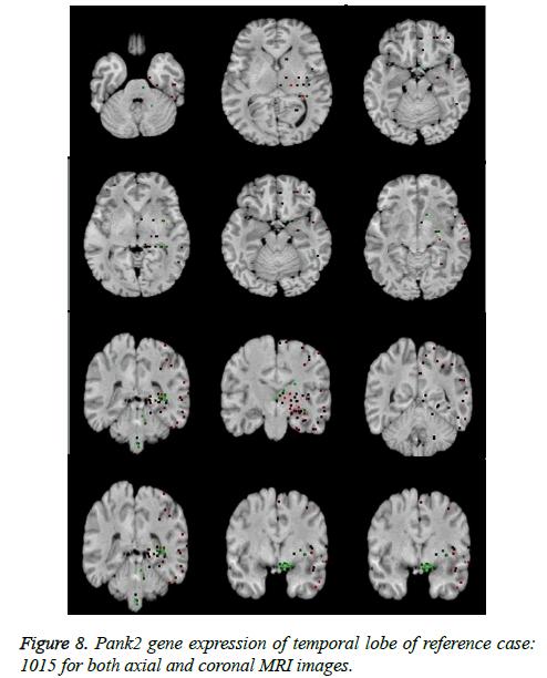 biomedres-coronal-MRI-images