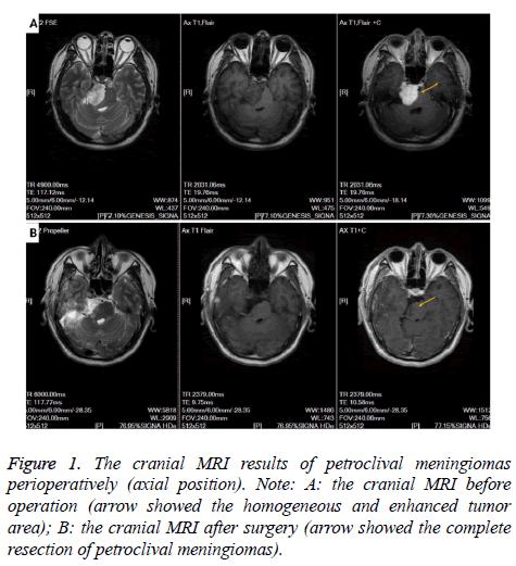 biomedres-cranial-MRI