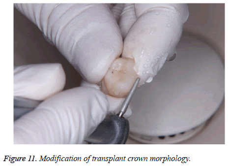 biomedres-crown-morphology