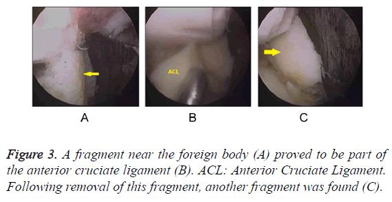 biomedres-cruciate-ligament