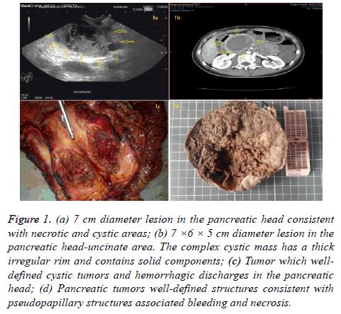 biomedres-cystic-mass
