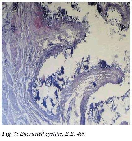 biomedres-cystitis