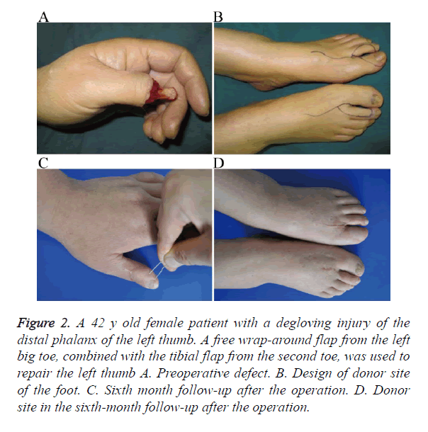 biomedres-degloving-injury