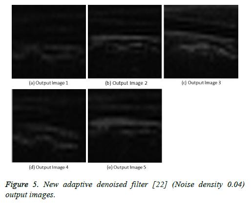 biomedres-denoised-filter