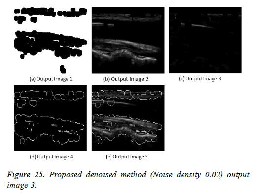 biomedres-denoised-method