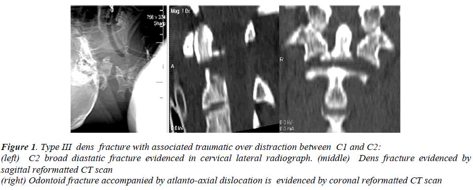 biomedres-dens-fracture