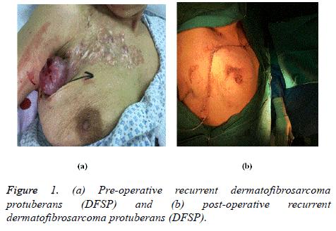 biomedres-dermatofibrosarcoma
