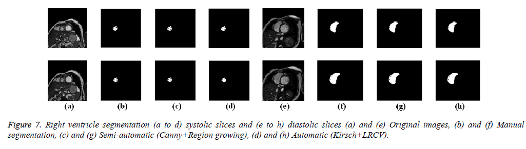 biomedres-diastolic-slices