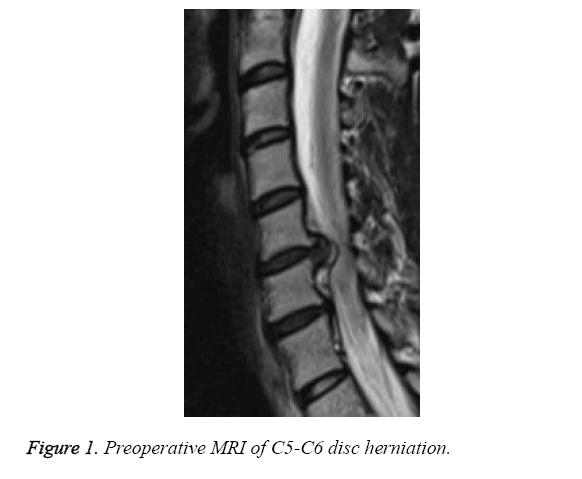 biomedres-disc-herniation