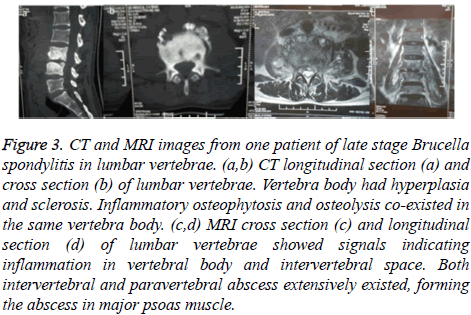 biomedres-disease-lumbar
