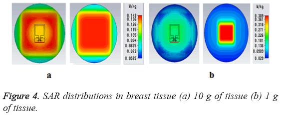biomedres-distributions-breast-tissue