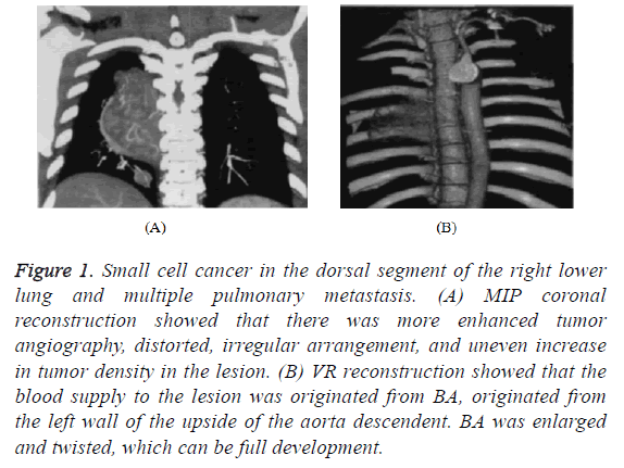 biomedres-dorsal-segment