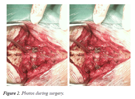 biomedres-during-surgery