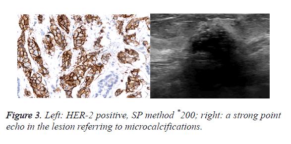 biomedres-echo-lesion