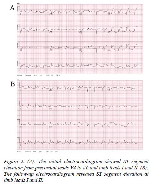 biomedres-electrocardiogram