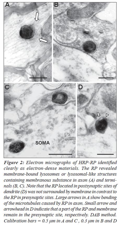 biomedres-electron-dense-axon-presynaptic