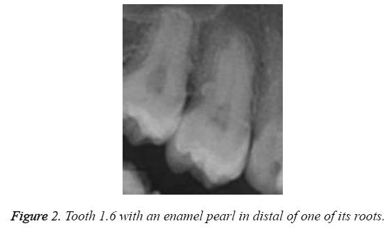 biomedres-enamel-pearl-distal