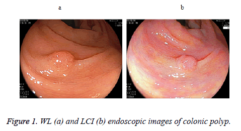 biomedres-endoscopic-images