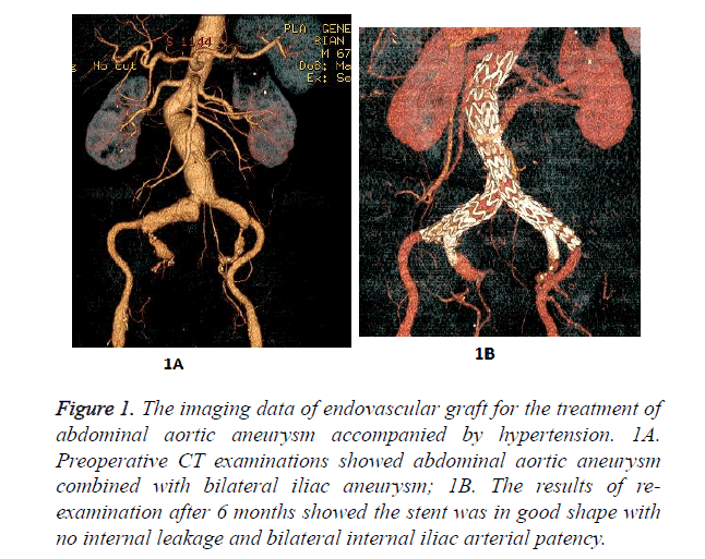biomedres-endovascular-graft