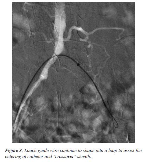 biomedres-entering-catheter
