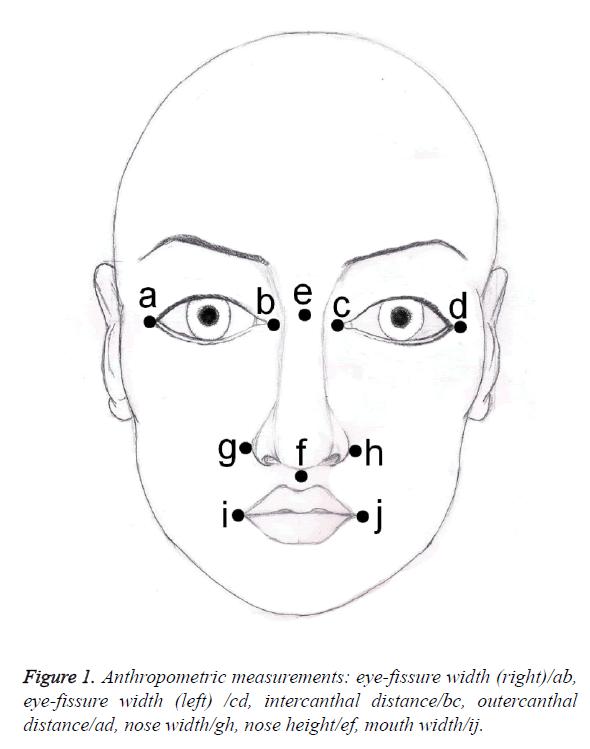 biomedres-eye-fissure