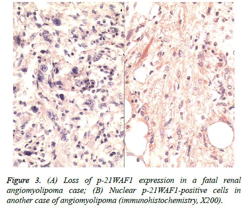 biomedres-fatal-renal-cells