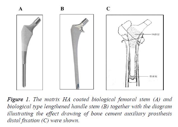 biomedres-femoral-stem