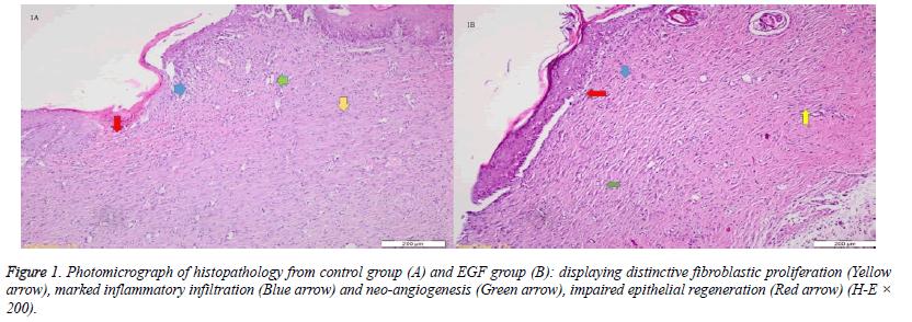 fibroblastic-proliferation-inflammatory
