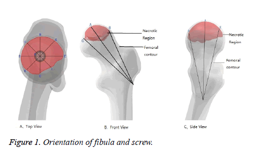 biomedres-fibula-screw