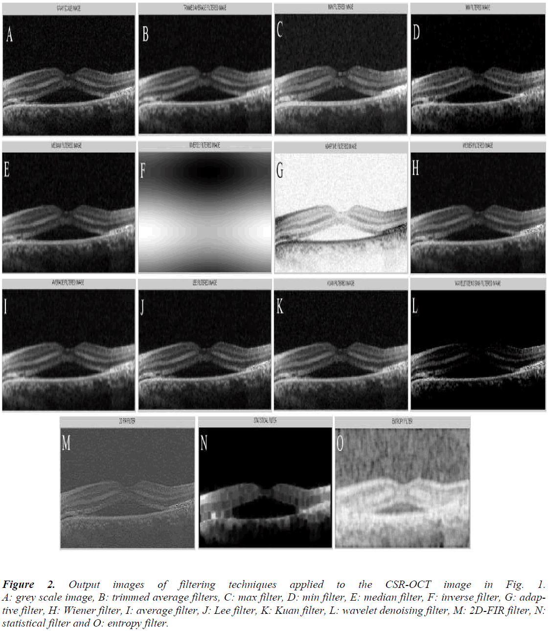 Comparative analysis of optical coherence tomography retinal