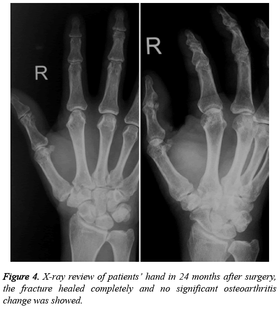 biomedres-fracture-healed-completely