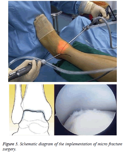biomedres-fracture-surgery