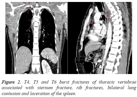 biomedres-fractures-thoracic-vertebrae