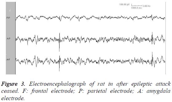 biomedres-frontal-electrode