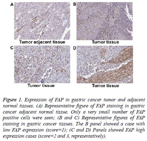 biomedres-gastric-cancer