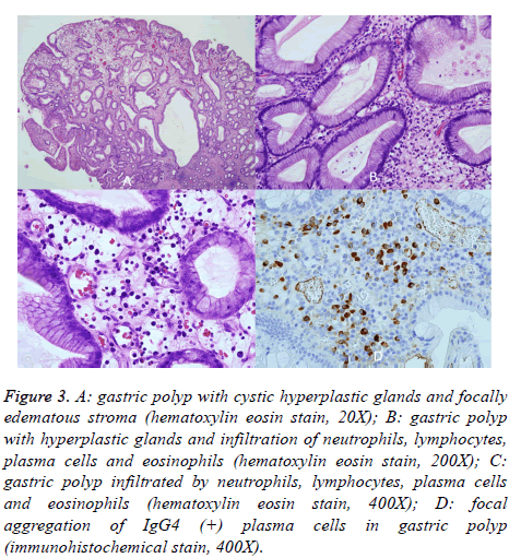 biomedres-gastric-polyp