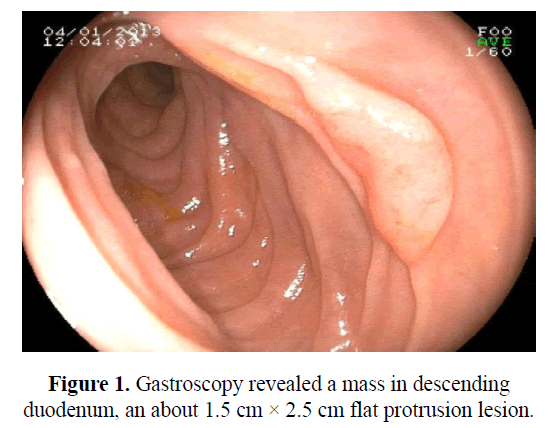 biomedres-gastroscopy-revealed