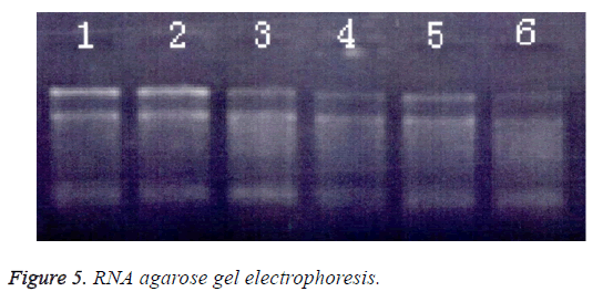 biomedres-gel-electrophoresis