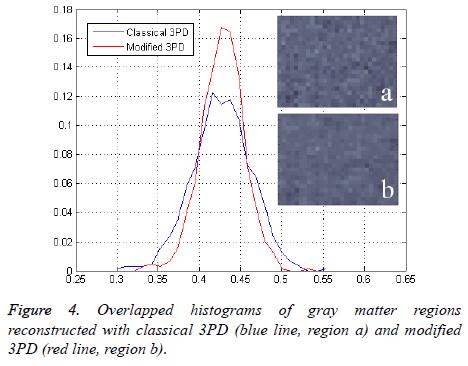 biomedres-gray-matter-regions