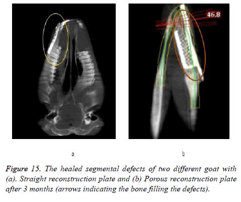 biomedres-healed-segmental
